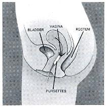 Tampon lost vagina